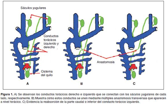 An anatomical variation: the aberrant termination of the thoracic duct