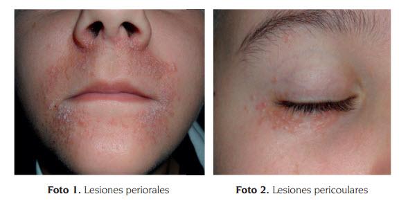 Perioral Dermatitis - WebMD