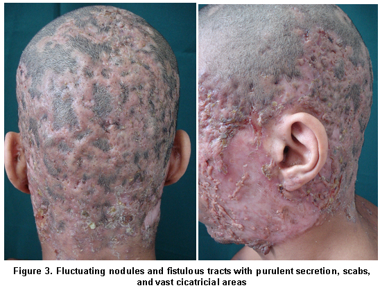 2eeba3d50ae0 Report of a patient with acne conglobata and perifolliculitis capitis  abscedens et suffodiens