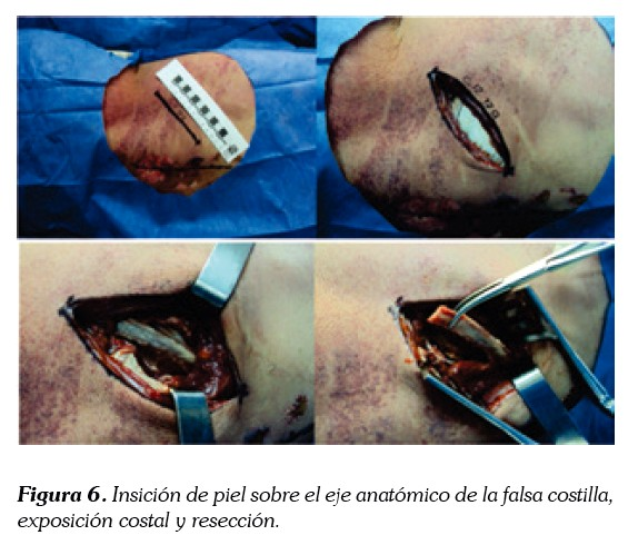 ANTEROLATERAL SELECTIVE APPROACH TO MANAGING FRACTURES OF THE REGION ...