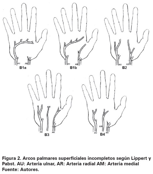 Superficial palmar arch: anatomy and clinical implications