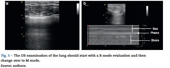 Semiology of lung ultrasonography - Dynamic monitoring