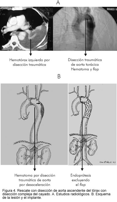 Endovascular treatment of thoracic aorta
