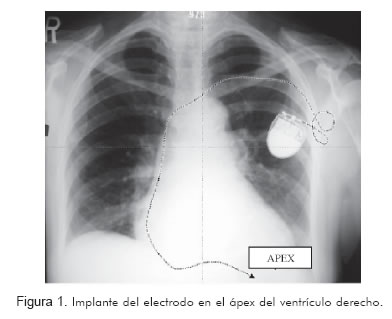 Effect of right ventricular electrode location (outflow tract vs ...