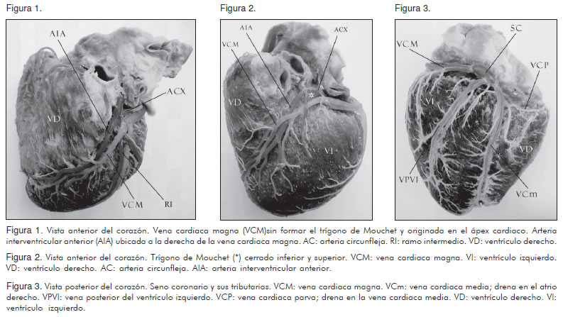 Study of the coronary sinus and its tributaries in colombian subjects