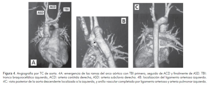 Circumflex retroesophageal right aortic arch with left arterial ...