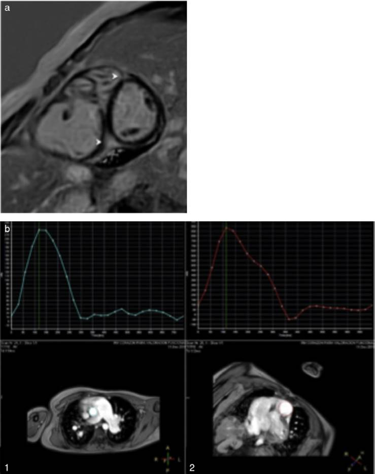 Scimitar syndrome in a cardiovascular magnetic resonance scan