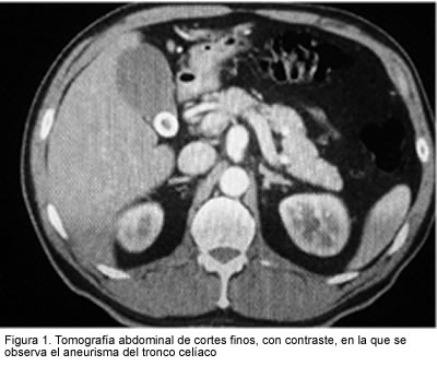 Surgical treatment of aneurysm of the celiac trunk. Case report