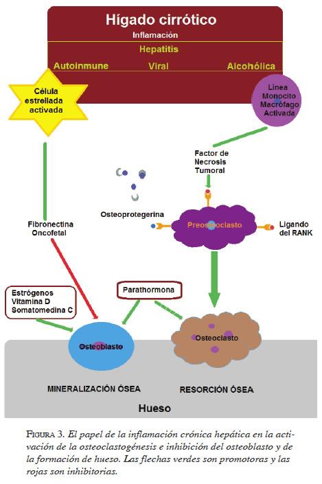 Bone loss in hepatic cirrhosis: phisiopathology of hepatic