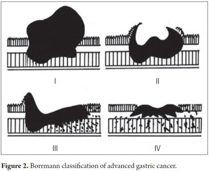 en_v28n3a11f2 Borrmann's classification for ca stomach