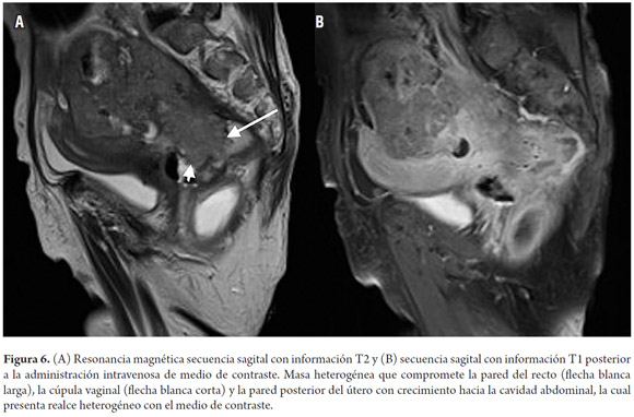 MRI Staging of Colorectal Cancer