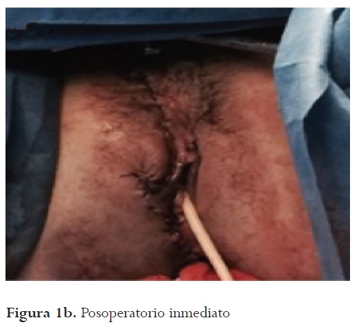 Vulvar and perineal injury secondary to complex pelvic and perineal ...