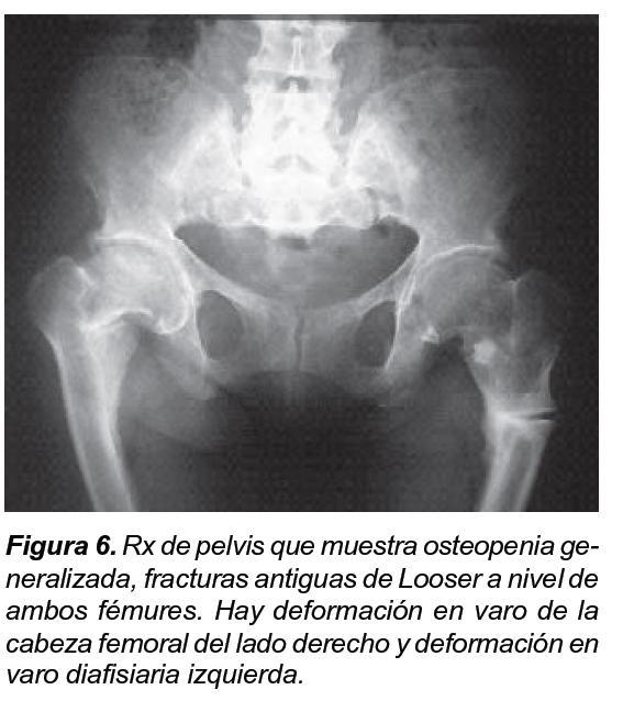 Rickets Vs Osteomalacia: X-linked Hypophosphatemic Rickets: Presentation Of A