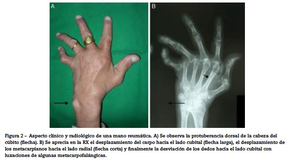 The rheumatoid wrist. Essential aspects in the treatment abstract