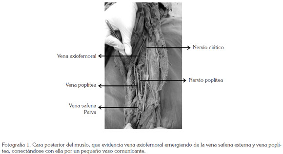 FEMORAL VEIN BITRONCULAR ORIGINATED WITH THE TRUNK AXIOFEMORAL PARVA ...